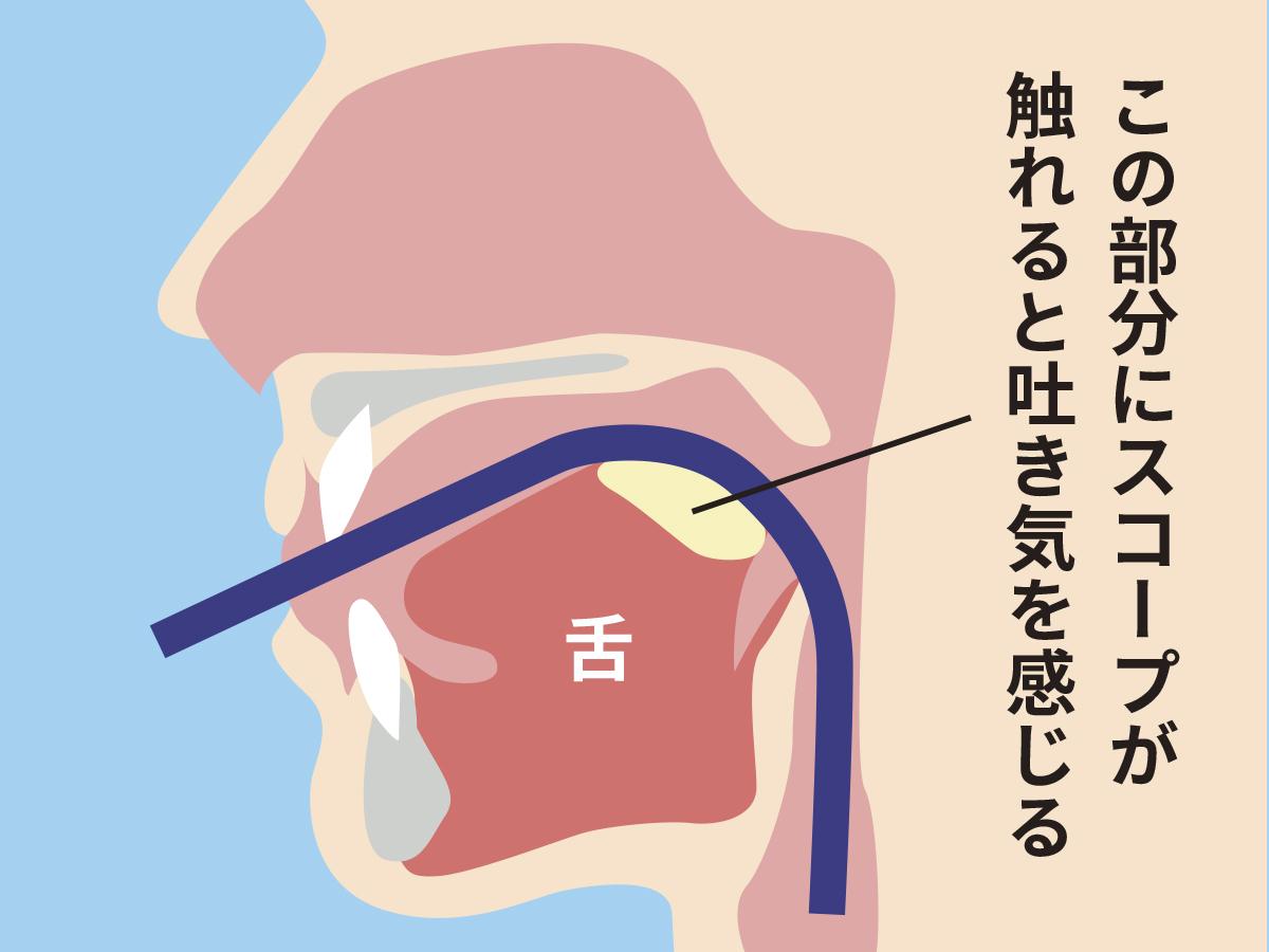 口からの胃カメラ検査